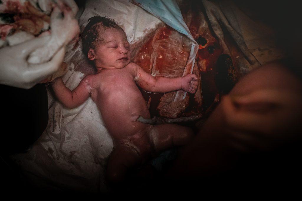 Augenblick direkt nach der Geburt, Neugeborenes liegt mit geschlossenen Augen auf Einmalunterlagen und ist von Blut umgeben. Die Nabelschnur ist noch blutgefüllt. Die Mutter sitzt auf dem Gebärhocker, ihre Hand und ein Oberschenkel ist sichtbar. Die Hebamme hat Einmalhandschuhe an und hält ein Handtuch in ihren Händen.